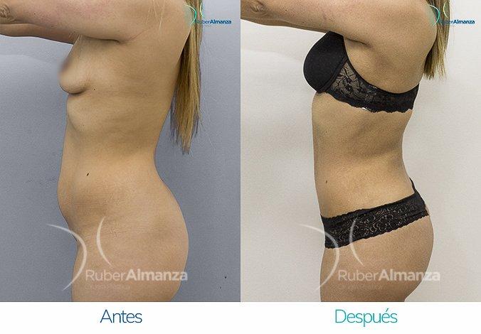 abdominoplastia-con-liposuccion-antes-y-despues-ruber-almanza-bogota-colombia-kg-lateral-izquierdo