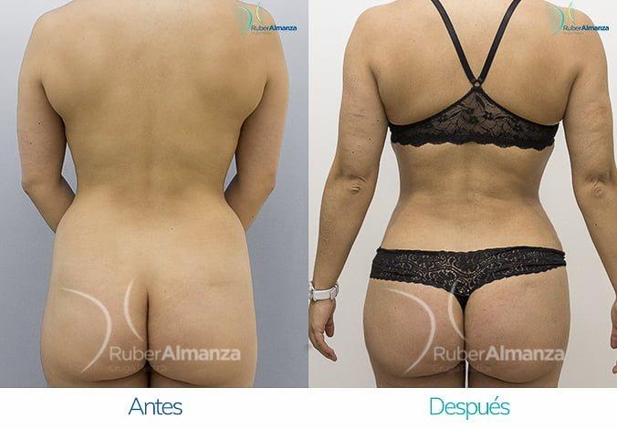 abdominoplastia-con-liposuccion-antes-y-despues-ruber-almanza-bogota-colombia-kg-posterior