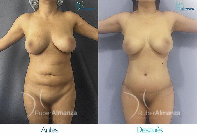 abdominoplastia-con-liposuccion-antes-y-despues-ruber-almanza-bogota-colombia-lm-frontal