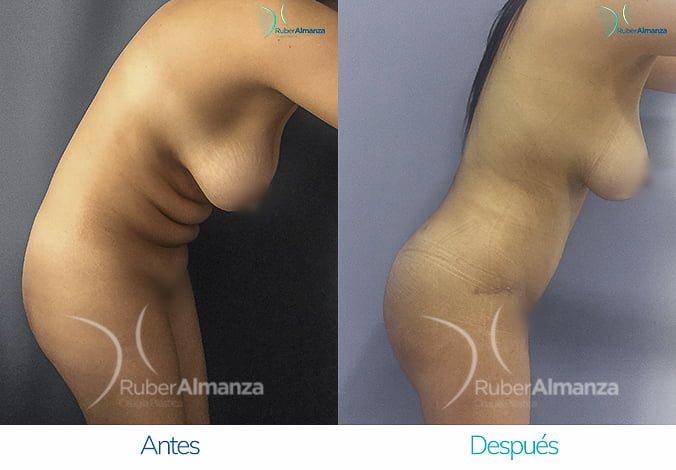 abdominoplastia-con-liposuccion-antes-y-despues-ruber-almanza-bogota-colombia-lm-lateral-derecho-2