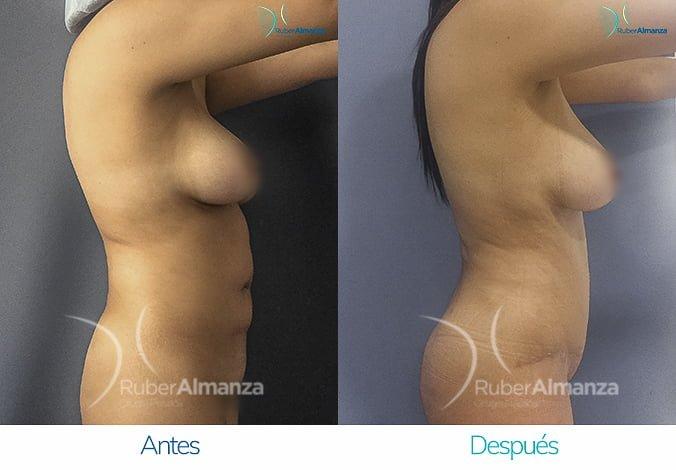 abdominoplastia-con-liposuccion-antes-y-despues-ruber-almanza-bogota-colombia-lm-lateral-derecho