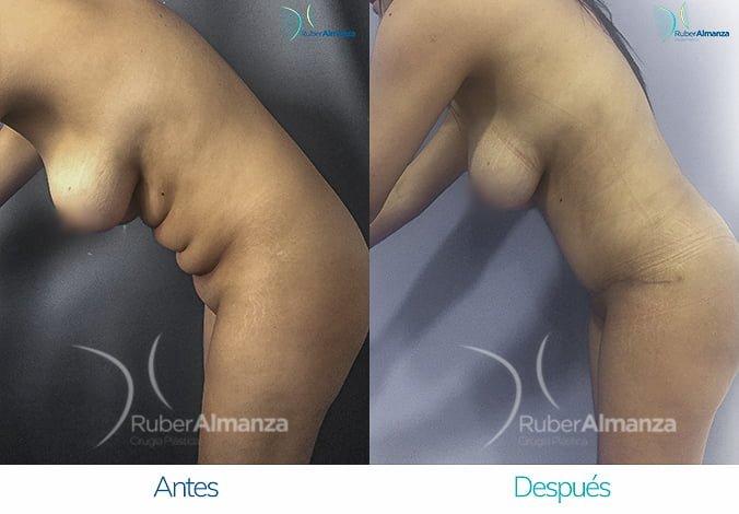 abdominoplastia-con-liposuccion-antes-y-despues-ruber-almanza-bogota-colombia-lm-lateral-izquierdo-2