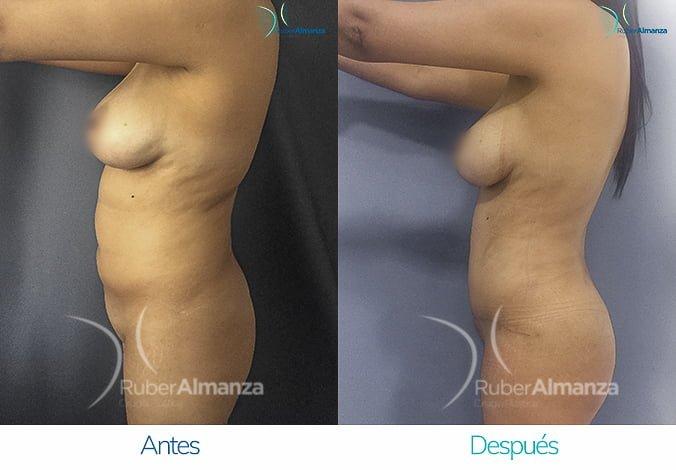 abdominoplastia-con-liposuccion-antes-y-despues-ruber-almanza-bogota-colombia-lm-lateral-izquierdo