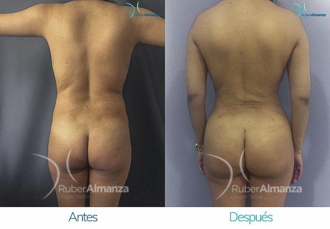 abdominoplastia-con-liposuccion-antes-y-despues-ruber-almanza-bogota-colombia-lm-posterior