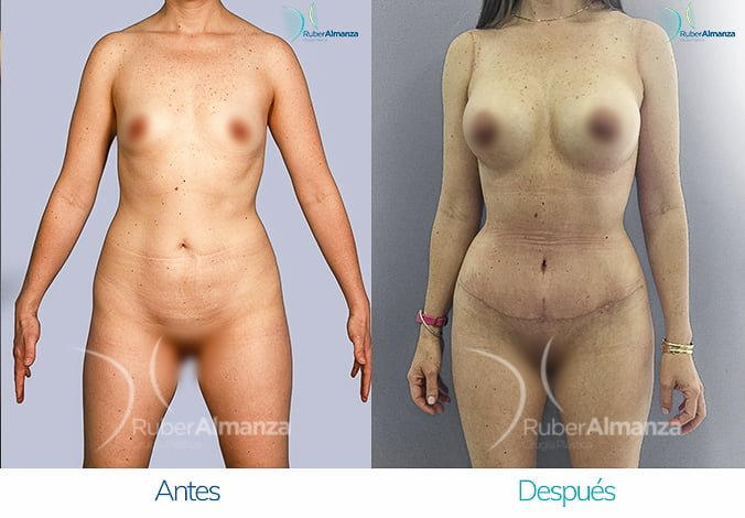 abdominoplastia-con-liposuccion-antes-y-despues-ruber-almanza-bogota-colombia-tl-frontal