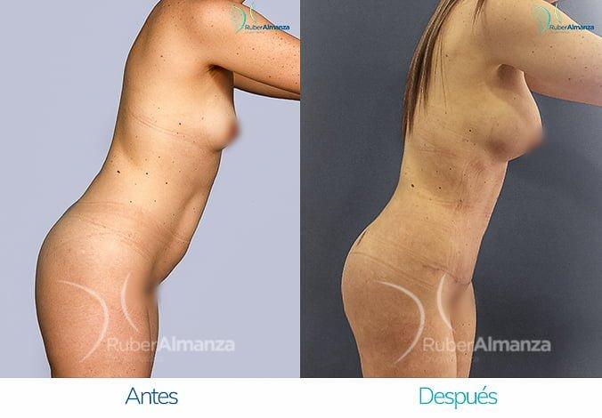 abdominoplastia-con-liposuccion-antes-y-despues-ruber-almanza-bogota-colombia-tl-lateral-derecho-2