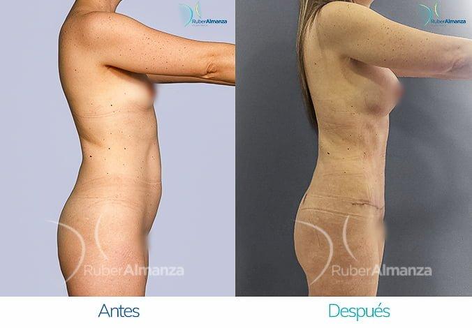 abdominoplastia-con-liposuccion-antes-y-despues-ruber-almanza-bogota-colombia-tl-lateral-derecho