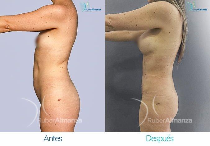 abdominoplastia-con-liposuccion-antes-y-despues-ruber-almanza-bogota-colombia-tl-lateral-izquierdo-2