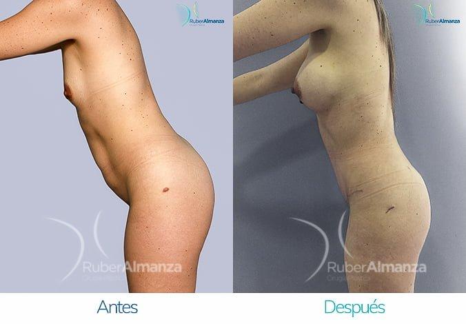 abdominoplastia-con-liposuccion-antes-y-despues-ruber-almanza-bogota-colombia-tl-lateral-izquierdo