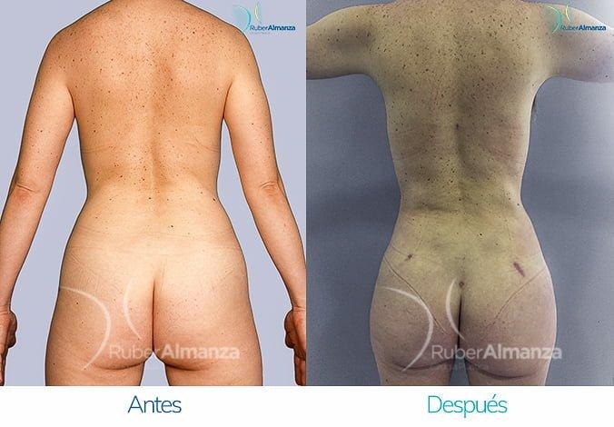 abdominoplastia-con-liposuccion-antes-y-despues-ruber-almanza-bogota-colombia-tl-posterior