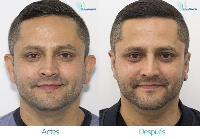 Otoplastia bogota antes y después Dr Ruber Almanza Cirujano Plastico