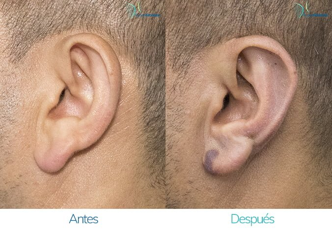 antes-y-despues-otoplastia-ruber-almanza-bogota-colombia-jc-izquierdo