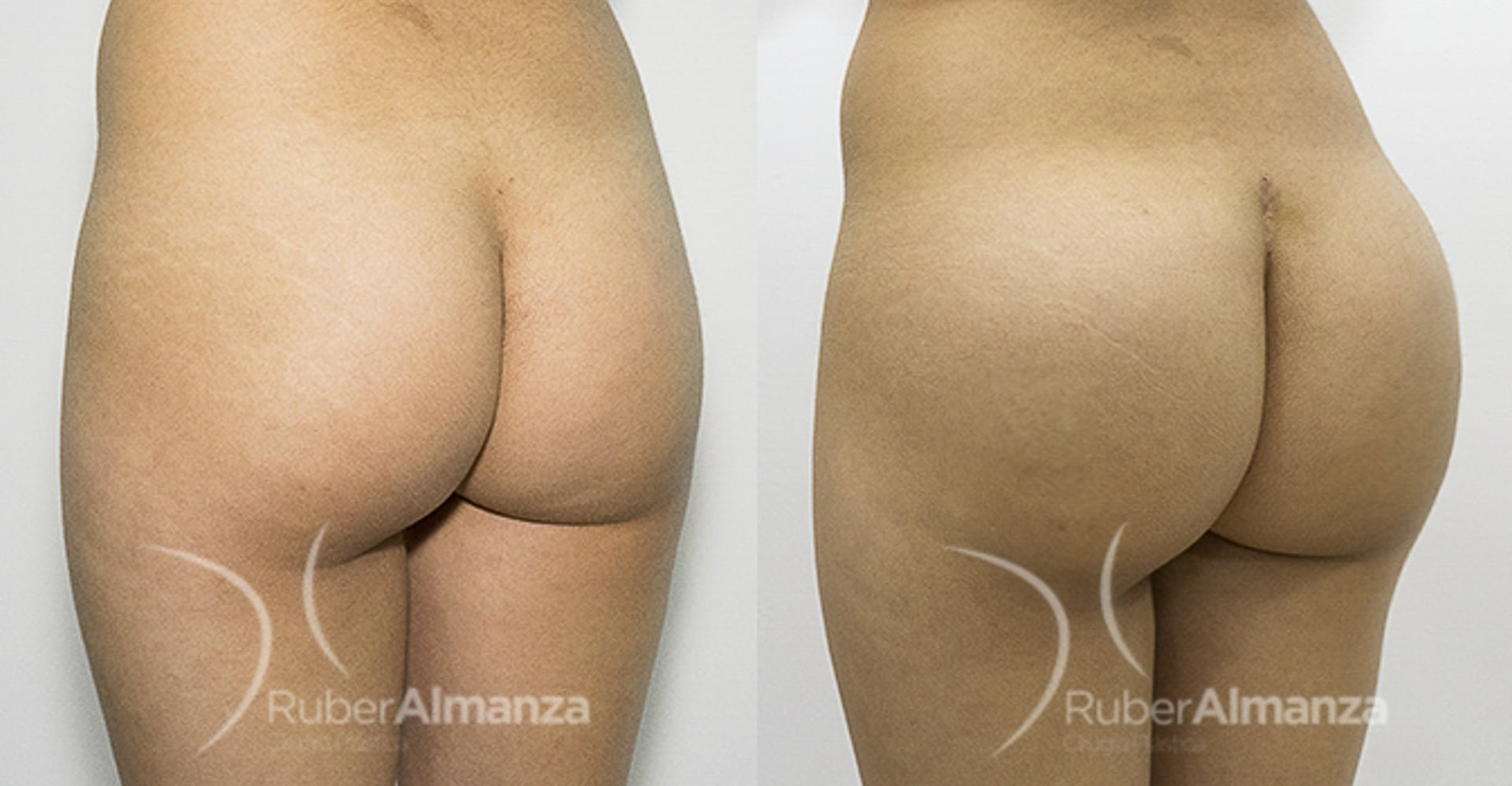 portada-caso-de-exito-gluteoplastia-ruber-almanza-bogota-colombia