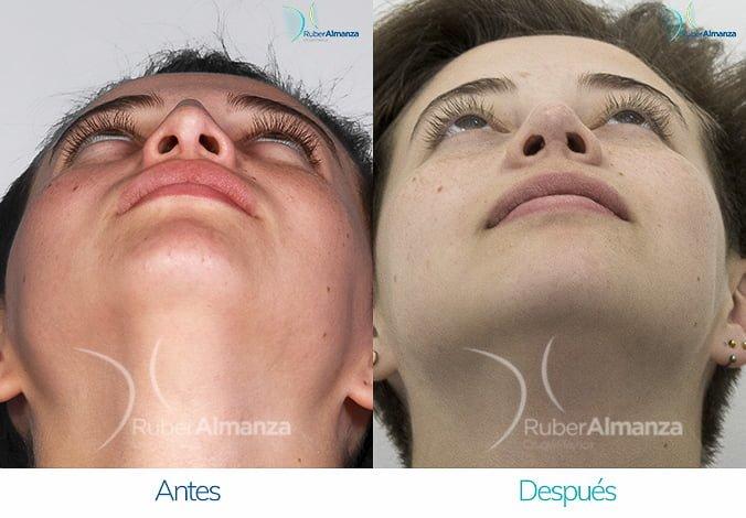 rinoplastia-antes-y-despues-ruber-almanza-bogota-colombia-ag-inferior