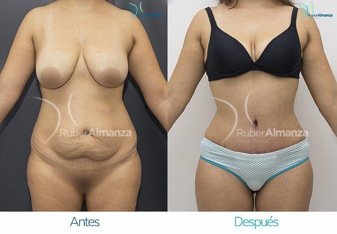 abdominoplastia-con-liposuccion-antes-y-despues-ruber-almanza-bogota-colombia-ip-frontal