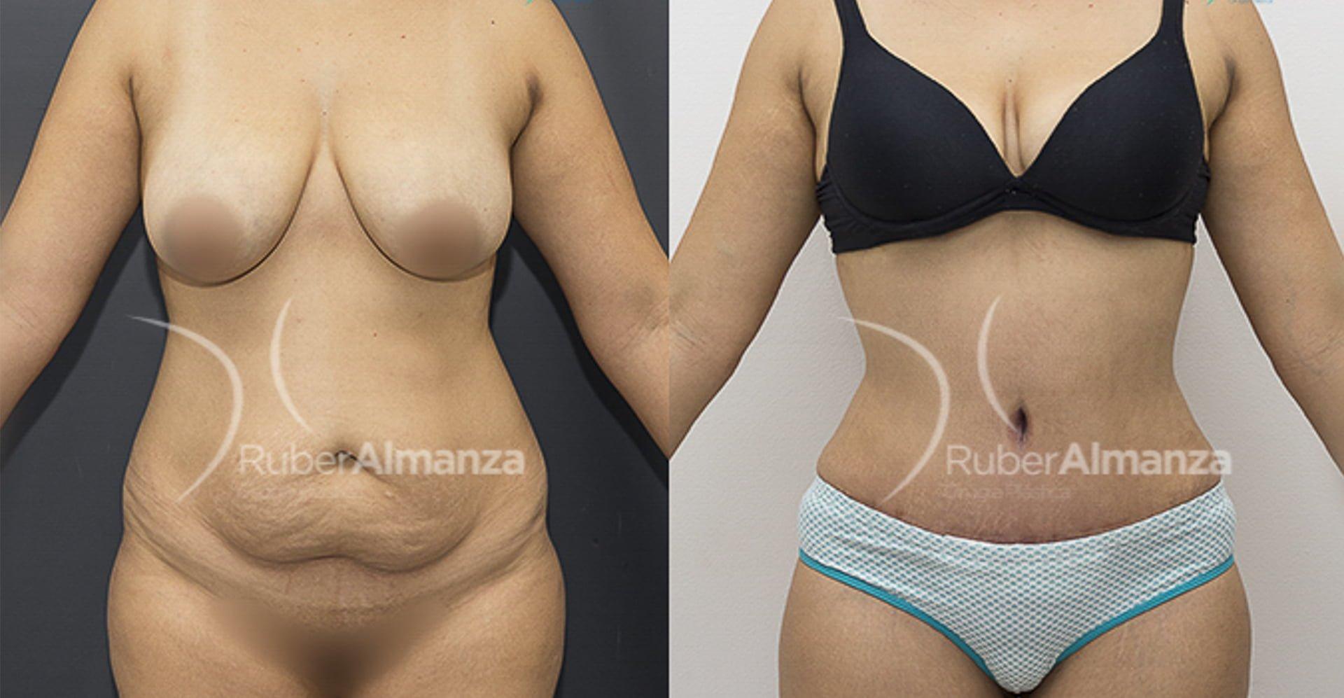 liposuccion-ruber-almanza-bogota-colombia-cirugia-plastica