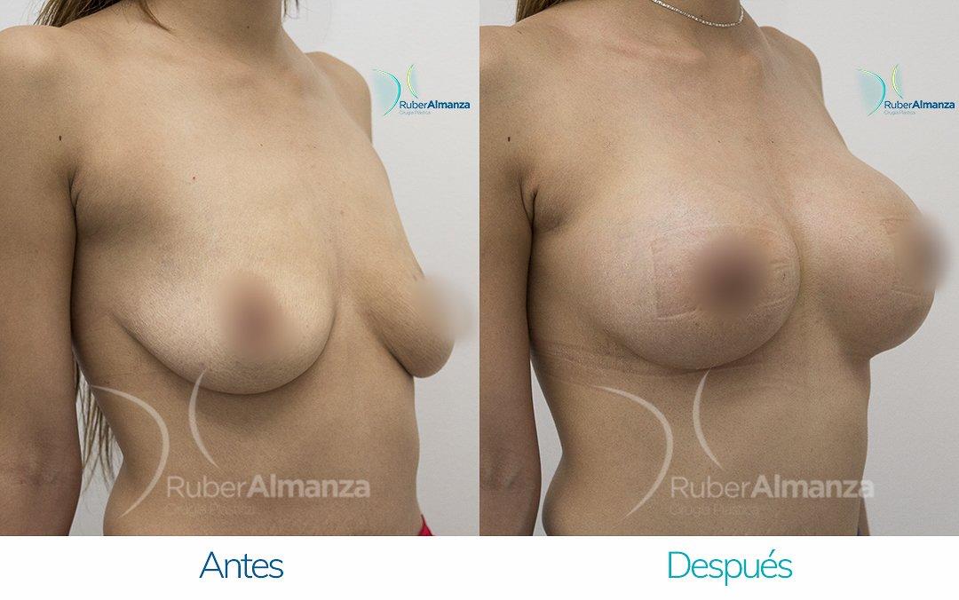 Levantamiento de busto Periareolar con implantes Antes y despues Ruber Almanza Bogota Colombia KG Diagonal Derecho