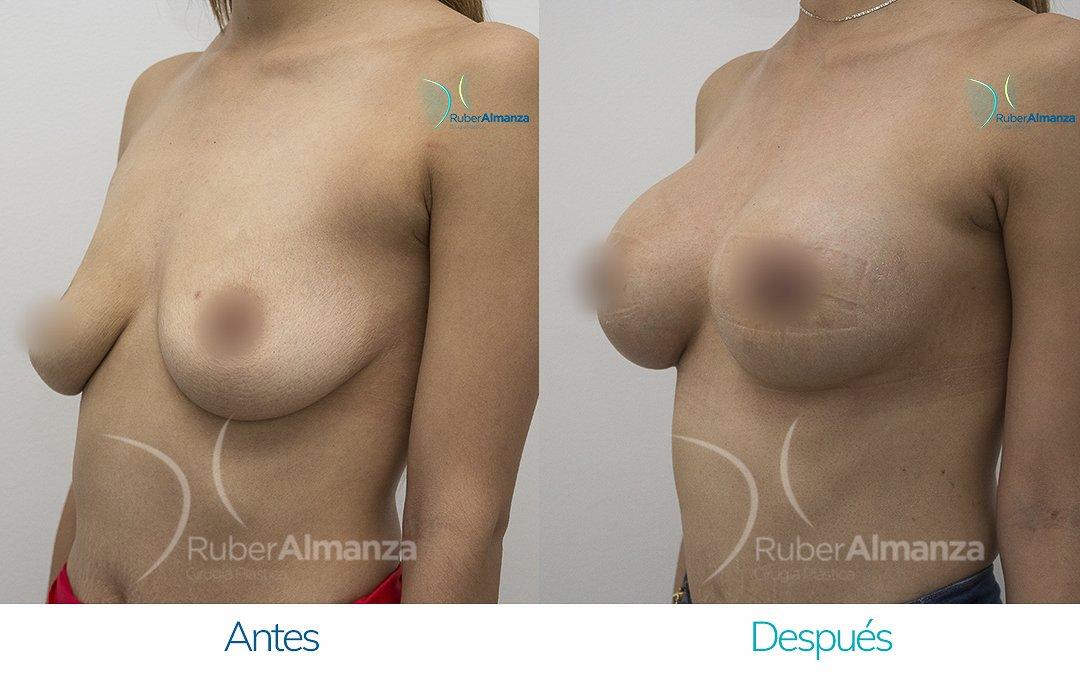 Levantamiento de busto Periareolar con implantes Antes y despues Ruber Almanza Bogota Colombia KG Diagonal Izquierdo