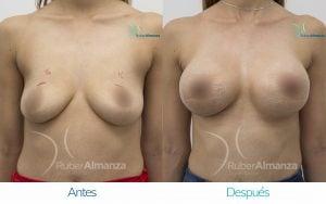 Levantamiento de busto Periareolar con implantes Antes y despues Ruber Almanza Bogota Colombia KG Frontal