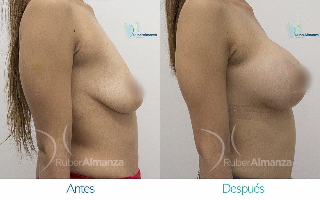 Levantamiento de busto Periareolar con implantes Antes y despues Ruber Almanza Bogota Colombia KG Lateral Derecho