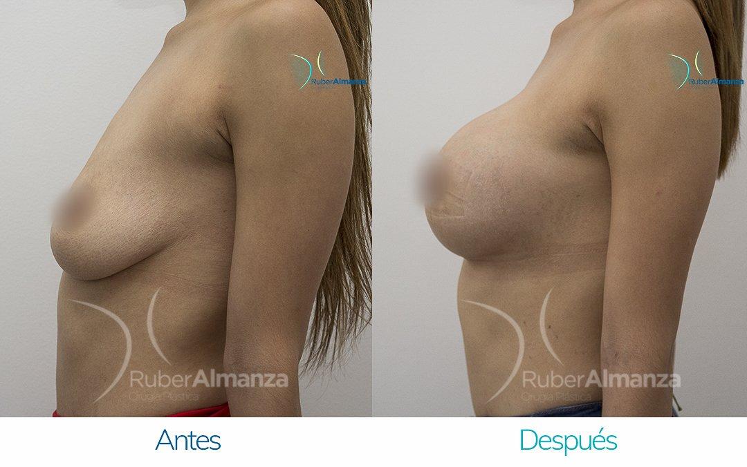 Levantamiento de busto Periareolar con implantes Antes y despues Ruber Almanza Bogota Colombia KG Lateral Izquierdo
