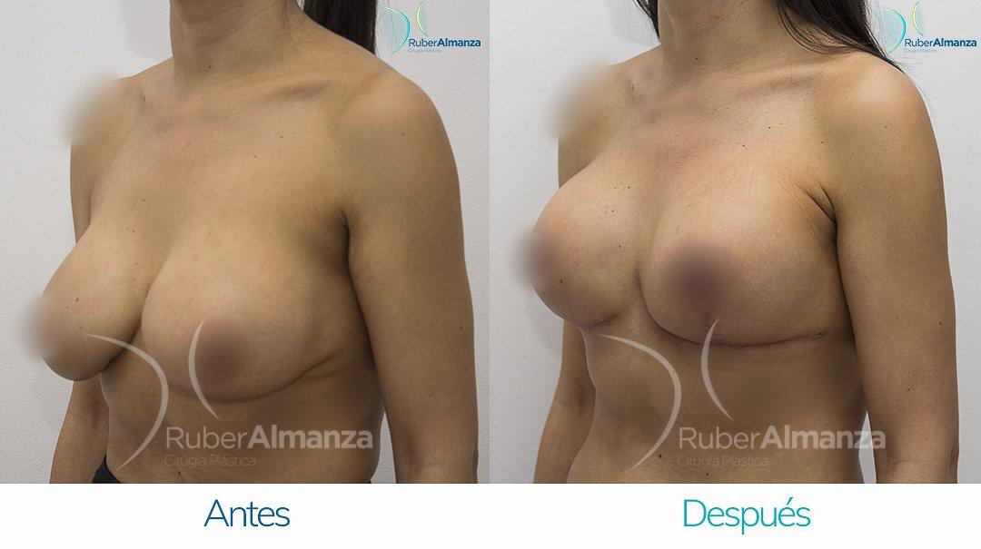 Levantamiento de busto T Invertida con implantes Antes y despues Ruber Almanza Bogota Colombia AU Diagonal Izquierdo
