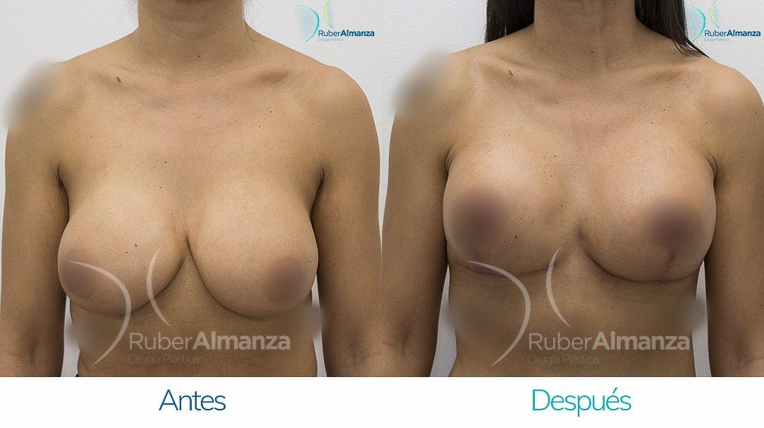 levantamiento-de-busto-t-invertida-con-implantes-antes-y-despues-ruber-almanza-bogota-colombia-au-frontal