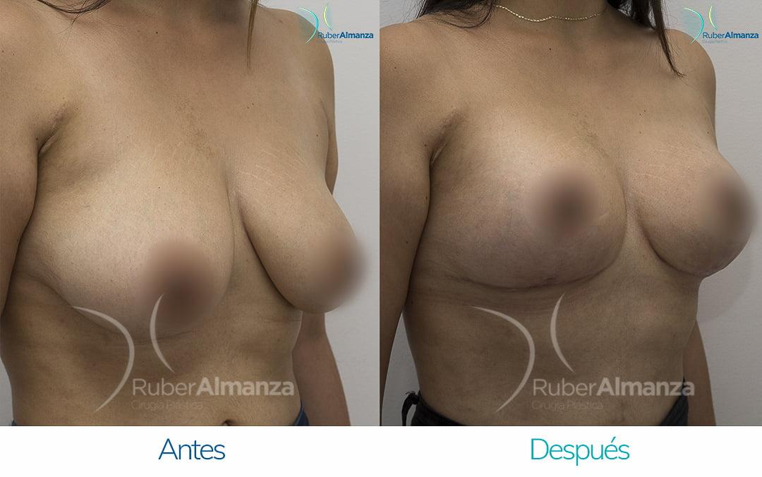 levantamiento-de-busto-t-invertida-con-implantes-antes-y-despues-ruber-almanza-bogota-colombia-pa-diagonal-derecho