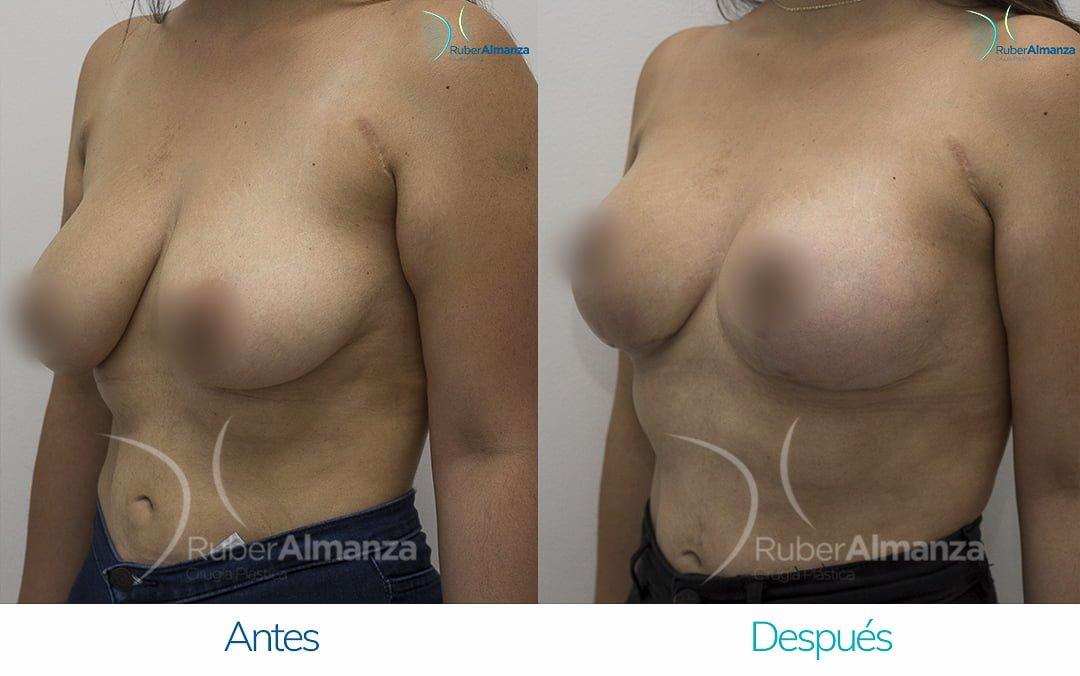 levantamiento-de-busto-t-invertida-con-implantes-antes-y-despues-ruber-almanza-bogota-colombia-pa-diagonal-izquierdo