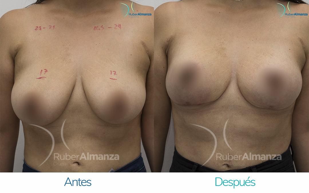levantamiento-de-busto-t-invertida-con-implantes-antes-y-despues-ruber-almanza-bogota-colombia-pa-frontal