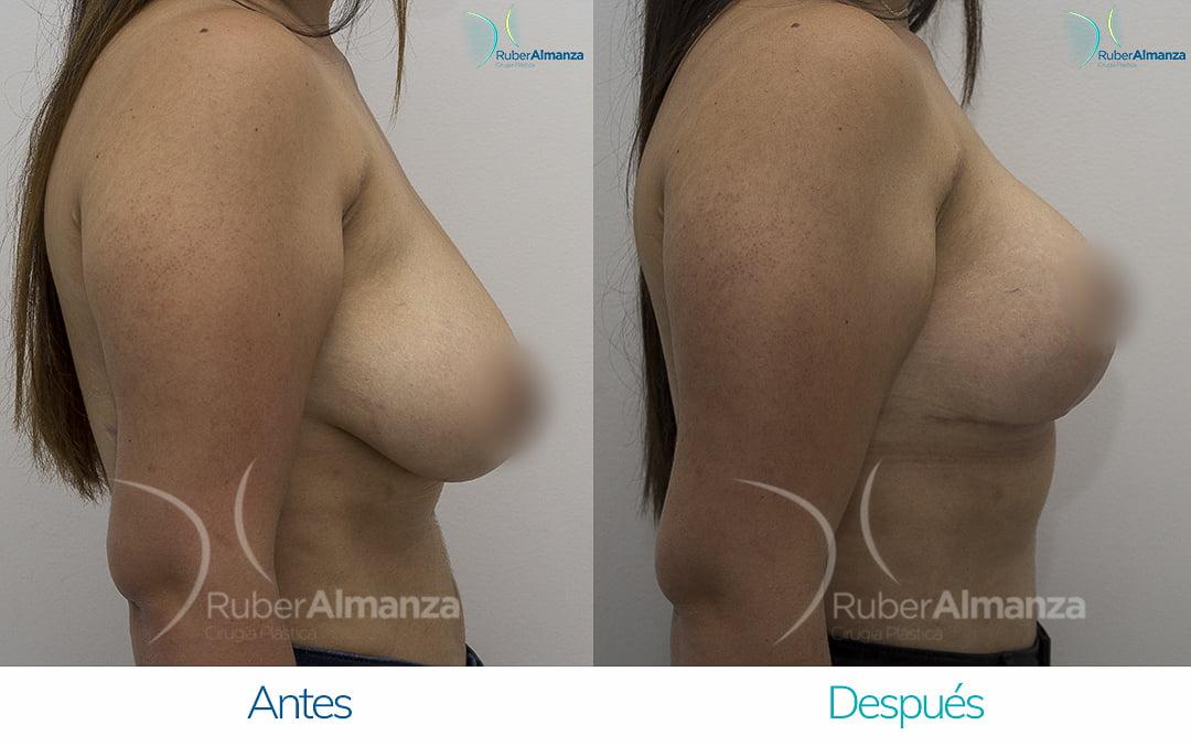 levantamiento-de-busto-t-invertida-con-implantes-antes-y-despues-ruber-almanza-bogota-colombia-pa-lateral-derecho