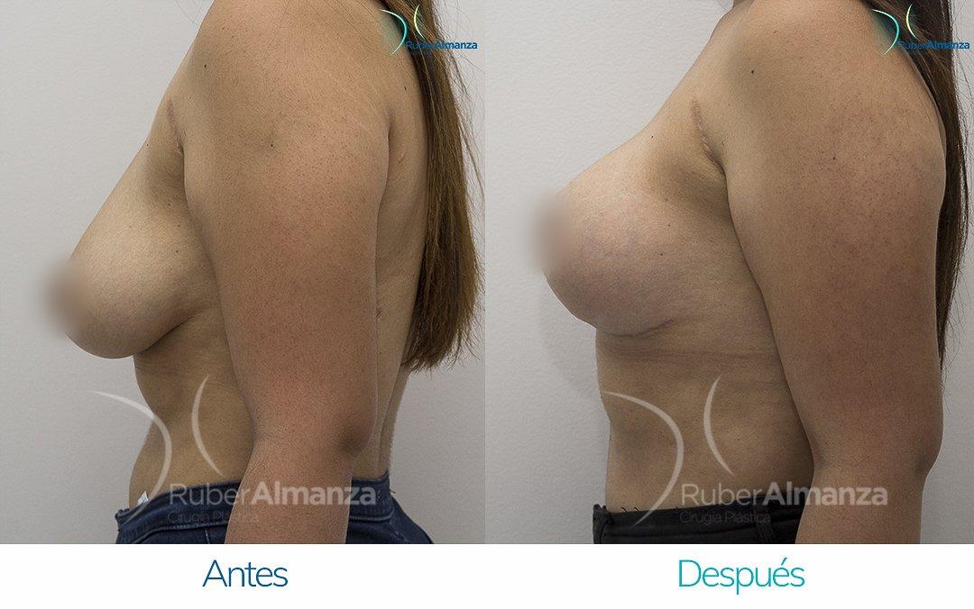 levantamiento-de-busto-t-invertida-con-implantes-antes-y-despues-ruber-almanza-bogota-colombia-pa-lateral-izquierdo