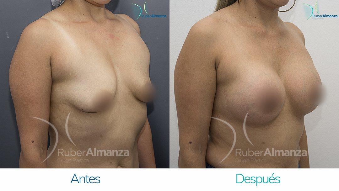 pexia-periareolar-con-implantes-antes-y-despues-ruber-almanza-bogota-colombia-mcn-diagonal-derecho