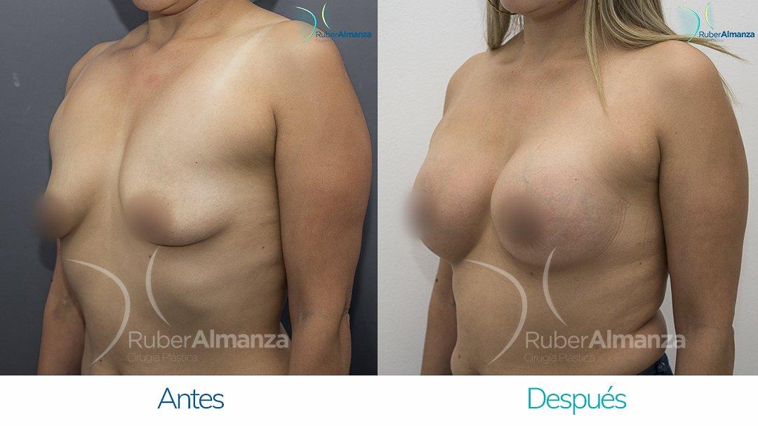 Pexia Periareolar con implantes Antes y despues Ruber Almanza Bogota Colombia MCN Diagonal Izquierdo.
