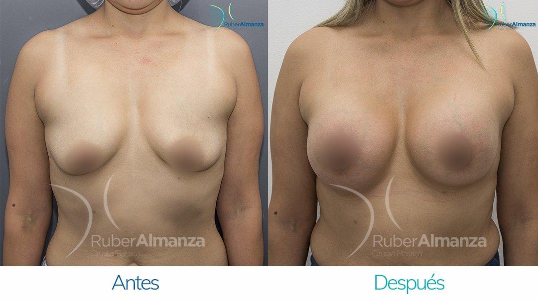 Pexia Periareolar con implantes Antes y despues Ruber Almanza Bogota Colombia MCN Frontal.