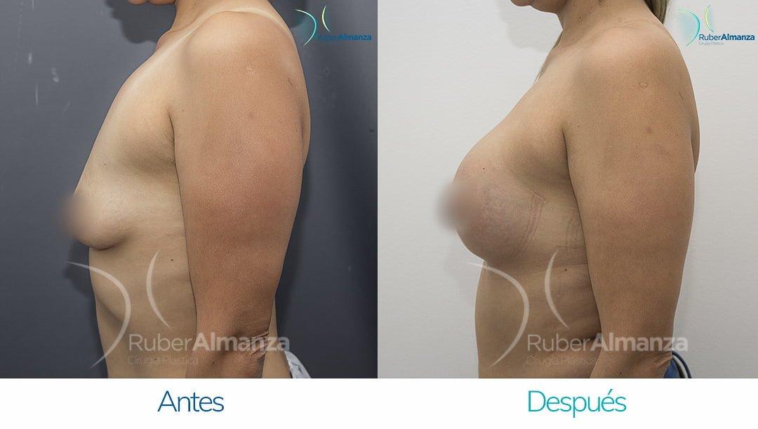 pexia-periareolar-con-implantes-antes-y-despues-ruber-almanza-bogota-colombia-mcn-lateral-izquierdo