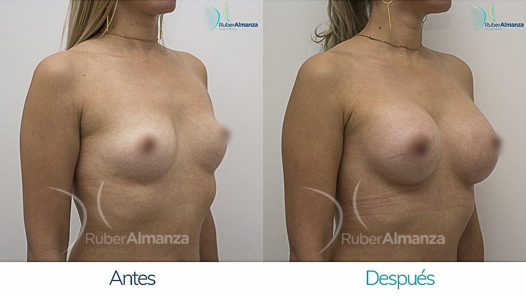 Mamoplastia De Aumento Antes y despues Bogota Ruber Almanza DG Diagonal Derecho
