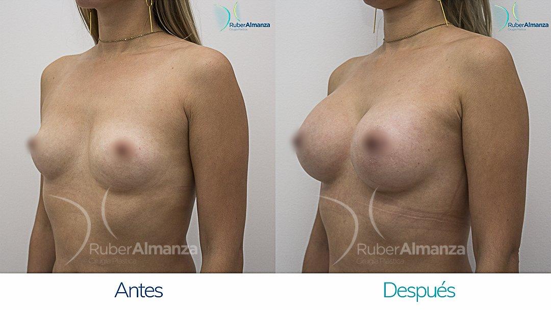 Mamoplastia De Aumento Antes y despues Bogota Ruber Almanza DG Diagonal Izquierdo