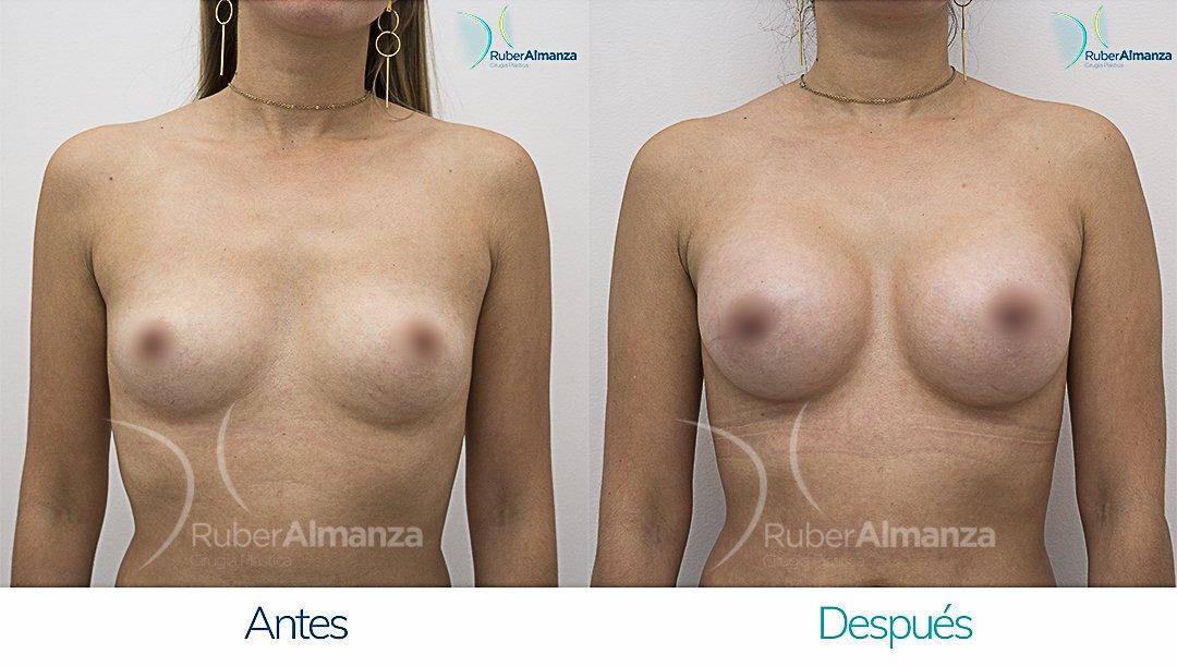 Mamoplastia De Aumento Antes y despues Bogota Ruber Almanza DG Frontal