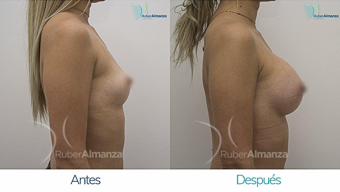 Mamoplastia De Aumento Antes y despues Bogota Ruber Almanza DG Lateral Derecho
