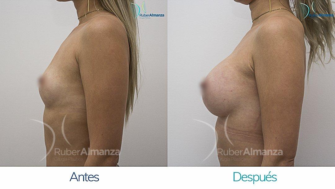 Mamoplastia De Aumento Antes y despues Bogota Ruber Almanza DG Lateral Izquierdo