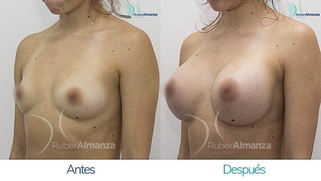 mamoplastia-de-aumento-antes-y-despues-bogota-ruber-almanza-dq-diagonal-derecho