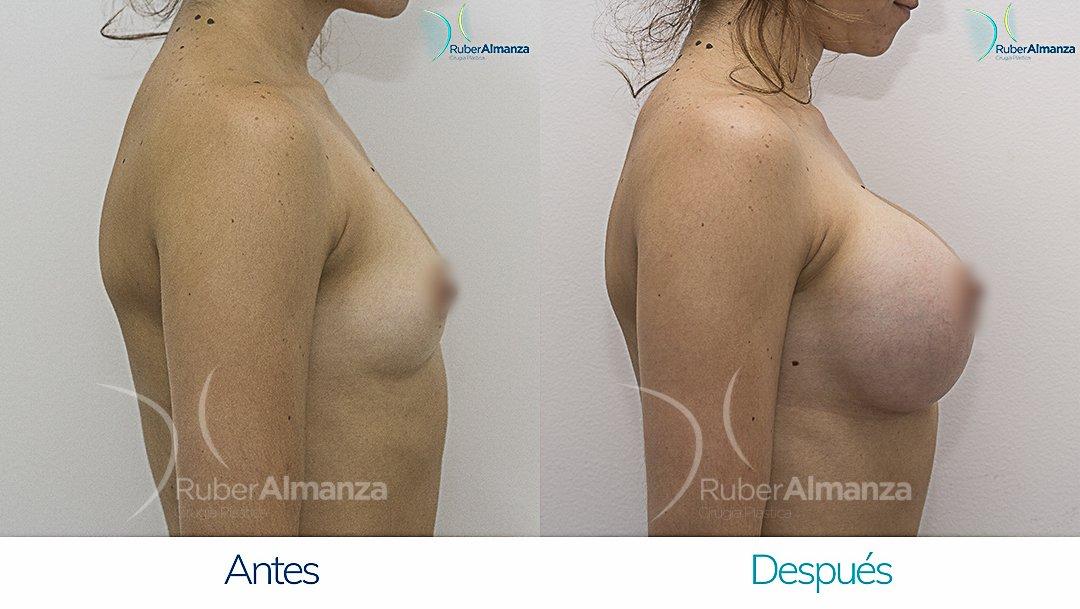 Mamoplastia De Aumento Antes y despues Bogota Ruber Almanza DQ Lateral Derecho