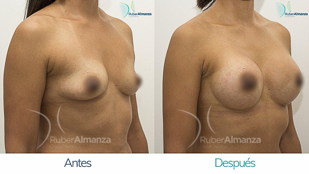 Mamoplastia De Aumento Antes y despues Bogota Ruber Almanza LR Diagonal Derecho