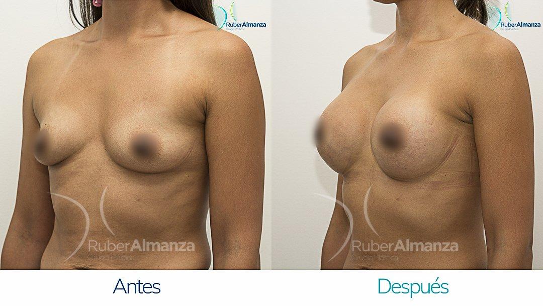 Mamoplastia De Aumento Antes y despues Bogota Ruber Almanza LR Diagonal Izquierdo