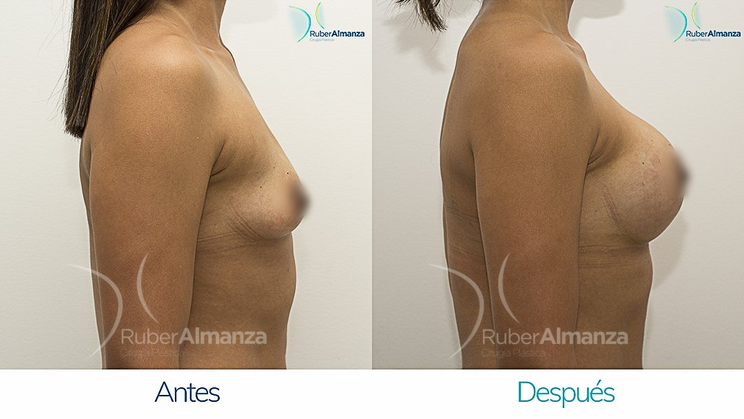 Mamoplastia De Aumento Antes y despues Bogota Ruber Almanza LR Lateral Derecho
