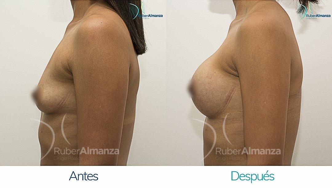 Mamoplastia De Aumento Antes y despues Bogota Ruber Almanza LR Lateral Izquierdo
