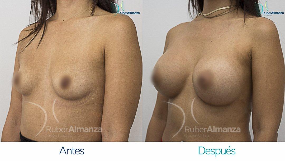mamoplastia-de-aumento-antes-y-despues-bogota-ruber-almanza-pd-diagonal-izquierdo