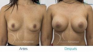 Mamoplastia De Aumento Antes y despues Bogota Ruber Almanza PD Frontal.