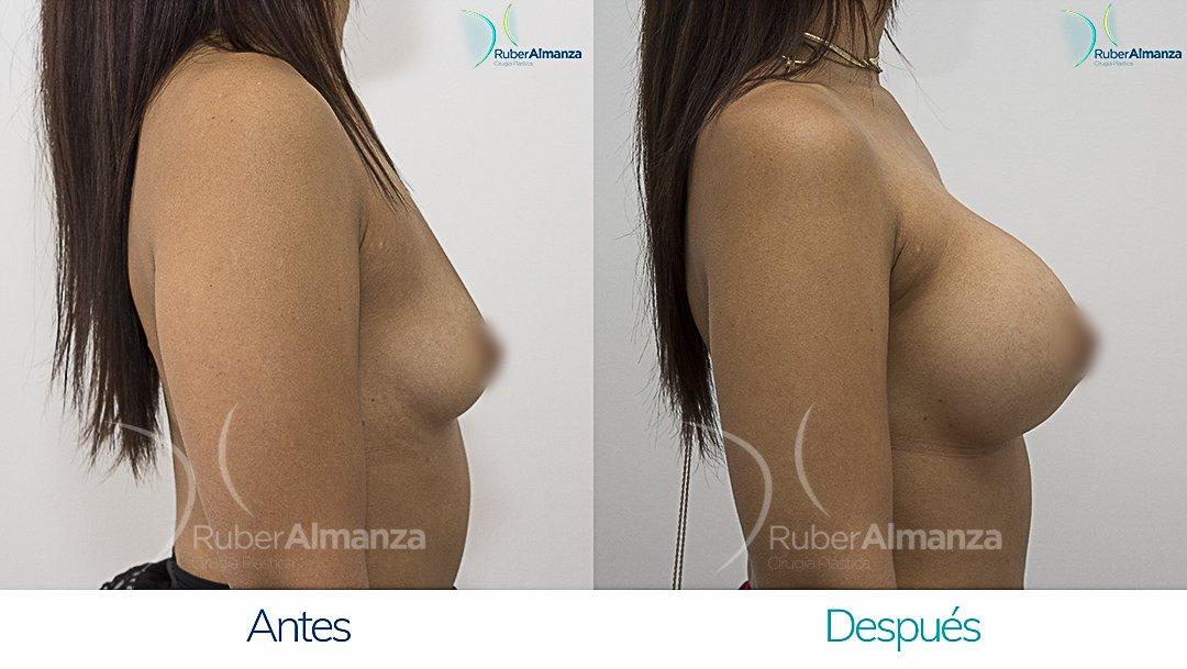 Mamoplastia De Aumento Antes y despues Bogota Ruber Almanza PD Lateral Derecho